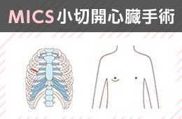 僧帽弁逆流症 MICS(小切開心臓手術) ― 骨を切らずに、骨のすき間から。―