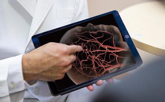 脳血管障害の治療に、「開頭手術」と「血管内治療」の両輪で挑む