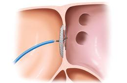 潜因性脳梗塞に対する卵円孔開存(PFO)閉鎖術の実施施設に認定されました