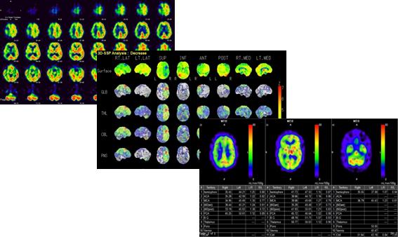 画像解析から実際の脳内の血流量を算出