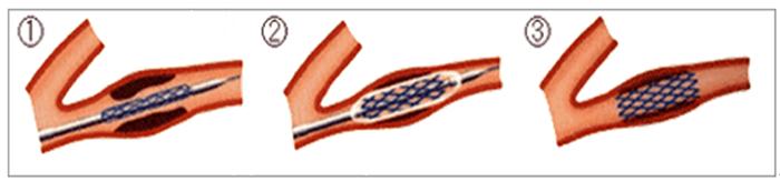 経皮的冠動脈インターベンション(PCI)