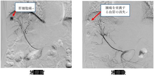 経カテーテル肝動脈化学塞栓術(TACE)