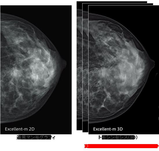 通常マンモグラフィとトモシンセシスの比較画像