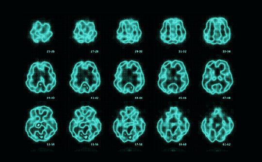 認知症性疾患の鑑別診断を当院の核医学検査でサポートします!
