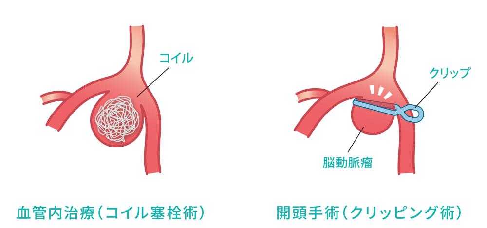 血管内治療(コイル塞栓術)と開頭手術(クリッピング術)の図