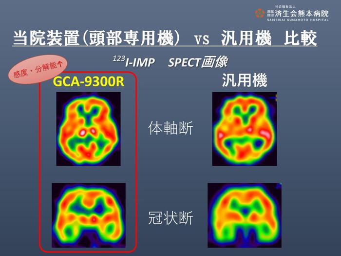 当院装置(頭部専用機)と汎用機の比較