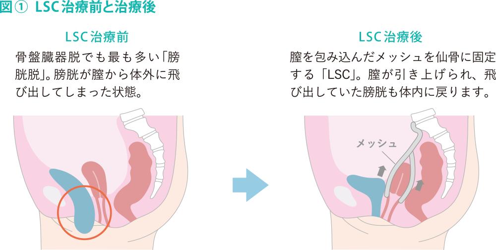 LSC治療前と治療後