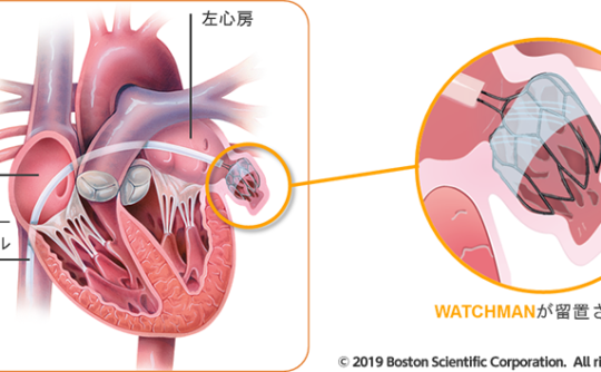 心原性脳塞栓症予防の予防治療、WATCHMAN(左心耳閉鎖システム)を用いたカテーテル治療を開始しました。