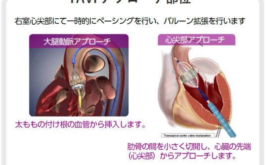 TAVI(経カテーテル的大動脈弁植え込み術)