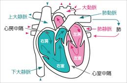 心房中隔欠損症に対するカテーテル治療を開始