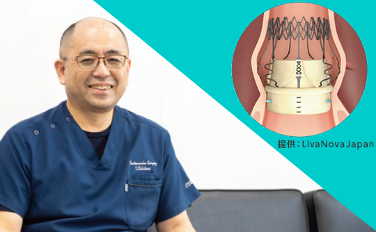 〝縫わない〟ことで生まれるメリット 大動脈弁狭窄症にスーチャレス生体弁置換術